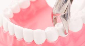 Антибиотики после удаления зуба: какие лучше пить?