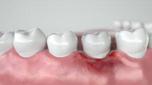 Какие антибиотики лучше при воспалении десен и корней зубов